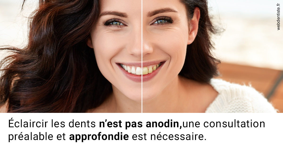 https://dr-langlade-philippe.chirurgiens-dentistes.fr/Le blanchiment 2