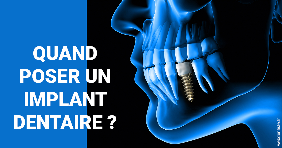 https://dr-langlade-philippe.chirurgiens-dentistes.fr/Les implants 1